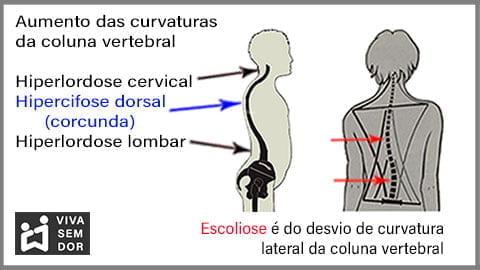 aumento-das-curvaturas-da-coluna-e-a-lombalgia-vivasemdor