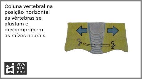 coluna-vertebral-na-posicao-horizontal-e-a-dor-no-joelho-vivasemdor
