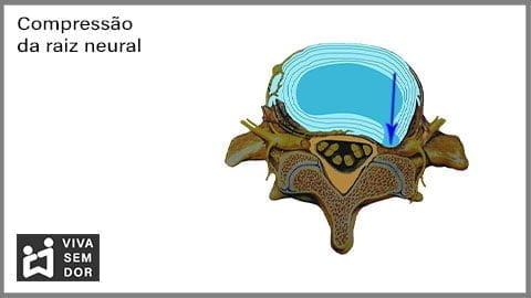 compressao-da-raiz-neural-e-a-dor-no-joelho-vivasemdor