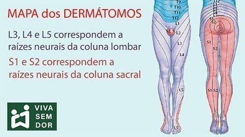 dermatomos-do-nervo-ciatico-vivasemdor