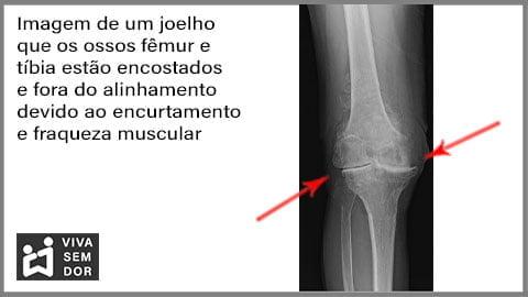 dor-no-joelho-com-artrose-vivasemdor