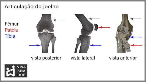 dor-no-joelho-imagem-da-articulacao-vivasemdor