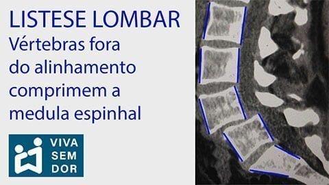 listese-lombar-comprime-a-medula-espinhal-vivasemdor
