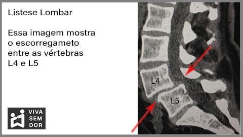 listese-lombar-e-a-lombalgia-vivasemdor