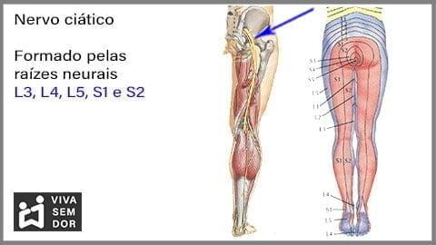 nervo-ciatico-e-a-dor-lombar-vivasemdor
